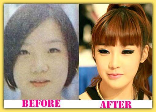 Park Bom Plastic Surgery Before And After Parkbomplasticsurgery