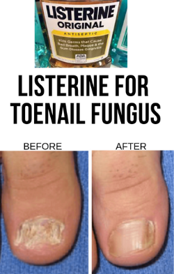 Listerine Foot Soak Discover How To Use Listerine For Toenail Fungus Effortlessly In 2020 Nail Fungus Cure Nail Fungus Remedy Nail Fungus Treatment
