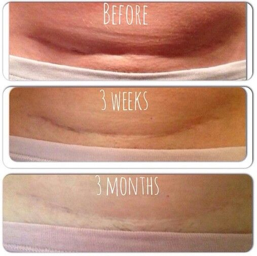 Defining Gel Not Only Lightened Her C Section Scar But It Tightened