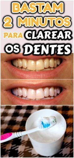 Bastam 2 Minutos Para Clarear Os Dentes Acabar Com Tartaro