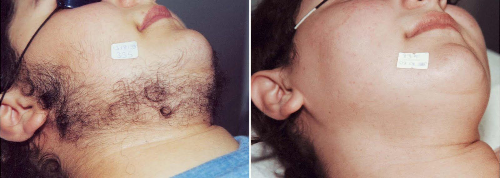 Facial Hair In Women What Can You Do About It Laser Hair