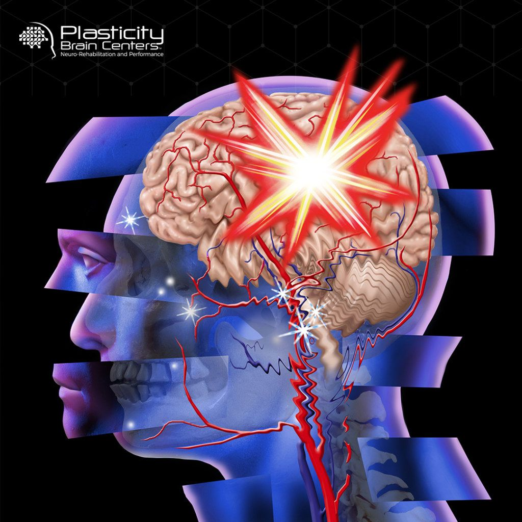Pin by Plasticity Brain Centers on Functional Neurologist