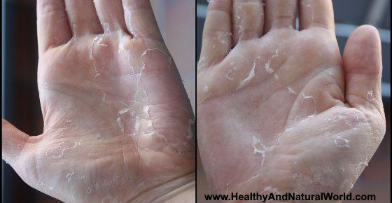 what causes dry skin on hands