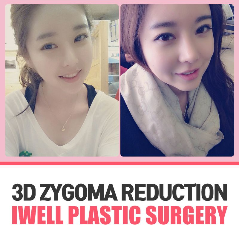 Iwell's facial countring surgery that makes a smooth line from cheekbone to chin from every single view!  Tel: (+82) 2-542-2017  Email: iwellps@naver.com  Webstie: http://eng.iwellps.com/