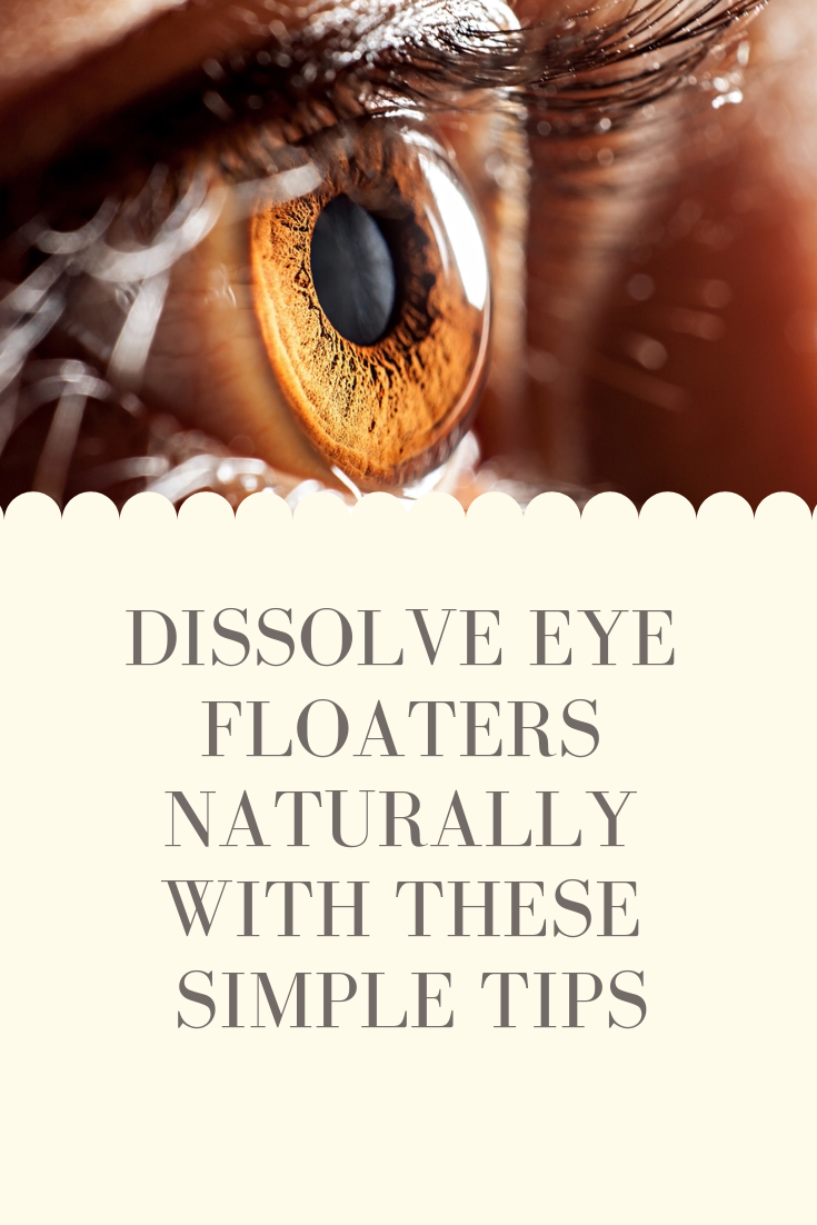 Nursing : Eye Health Remedies and Get rid of eye floaters easily Easily get rid of eye floaters with the tips on our website