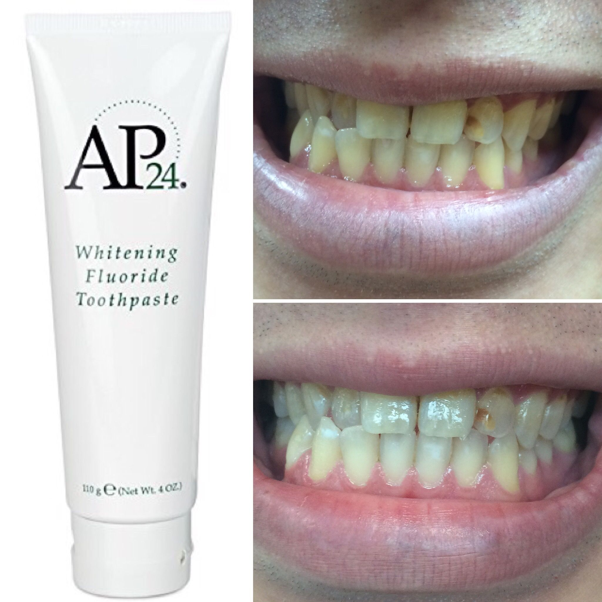 after 1 week use of ap24 whitening toothpaste say hello to your