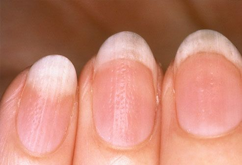 Rippled Nails If Surface Is Or Pitted It May Be A Sign Of Psoriasis