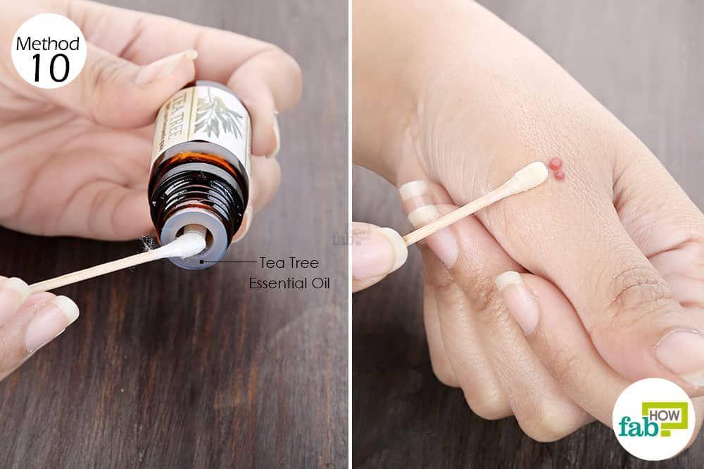 Use Tea Tree Oil For Health To Treat Molluscum Contagiosum