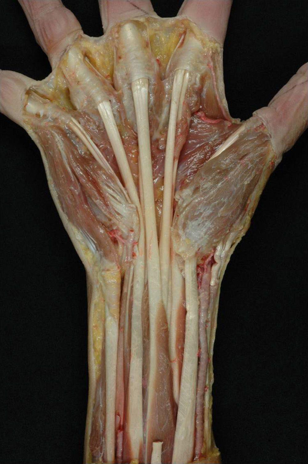 Resultado de imagen de tendones de la mano | Anatomia mano ...