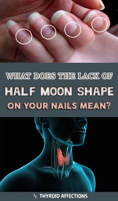 Do You Have White Spots Half Moon On Your Nails Here S What They Mean White Spots On Nails Diy Hair Loss Treatment Hair Loss Women Treatment