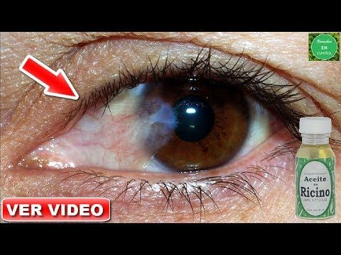 remedio natural para herpes ocular