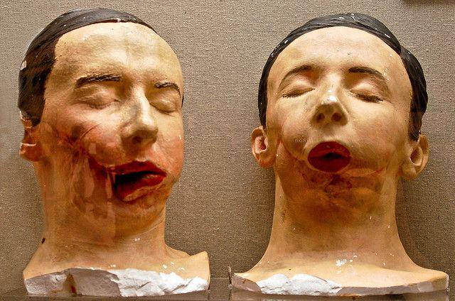 Plaster models Civil War facial reconstruction models ...