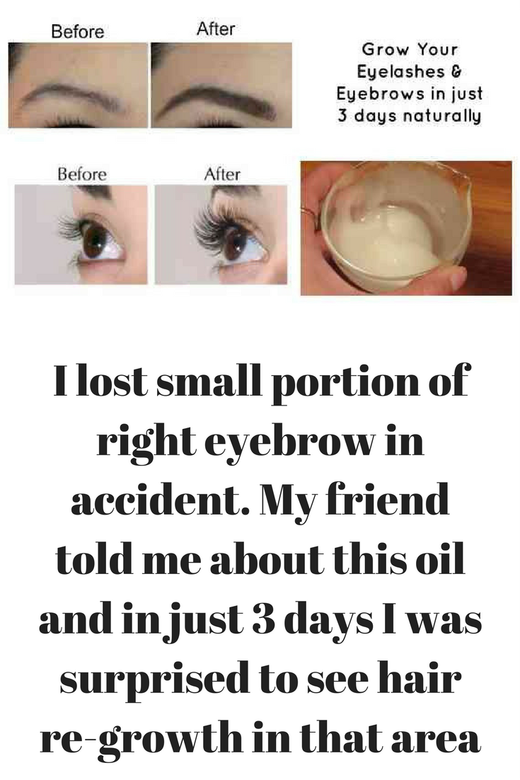 I Lost Small Portion Of Right Eyebrow In Accident My Friend Told Me