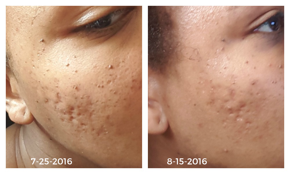 Pitted Acne Scars Treatment