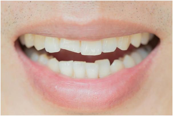 How To Take Care Of A Broken Or Cracked Teeth Broken Tooth Broken Tooth Repair Dental Fillings