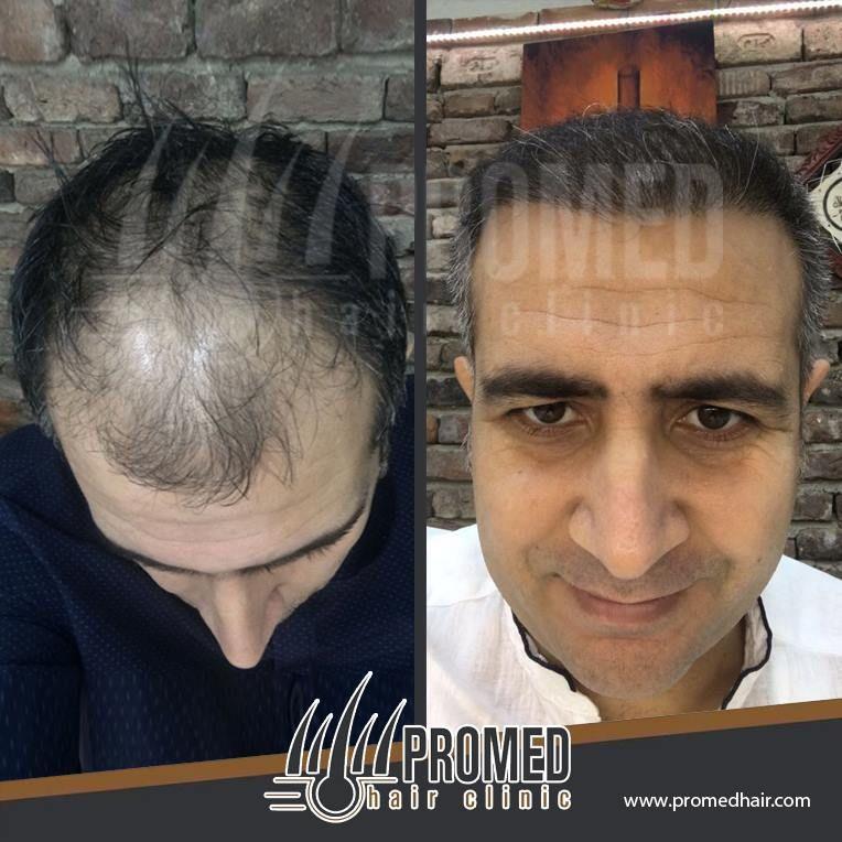 Pin on Saç Ekimi کاشت مو Hair Transplant Trapianto