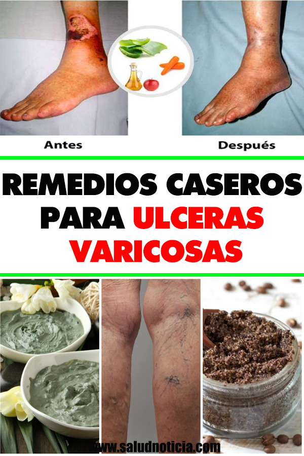 llagas de diabetes en espinillas