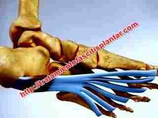 La fascitis plantar es una afección en la banda tenar que une el talón con los dedos de los pies, y es una banda ancha en la zona de la planta del pie, la cual sufre edema cuando se lesiona, aunque las lesiones no son productos de un solo traumatismo, sino que generalmente son producto de p... - http://tratamientofascitisplantar.com/vendajes-para-tratar-la-fascitis-plantar/