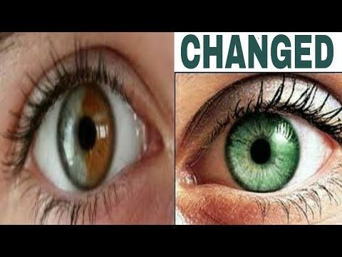 This Shampoo With Baking Soda And 2 Secret Ingredients Make Hair Grow Crazy Youtube Change Your Eye Color Eye Color Change Eye Color