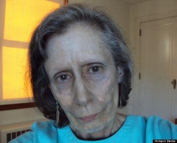 Rosemary Jacobs ora ha 71 anni e soffre di argiria. La ...