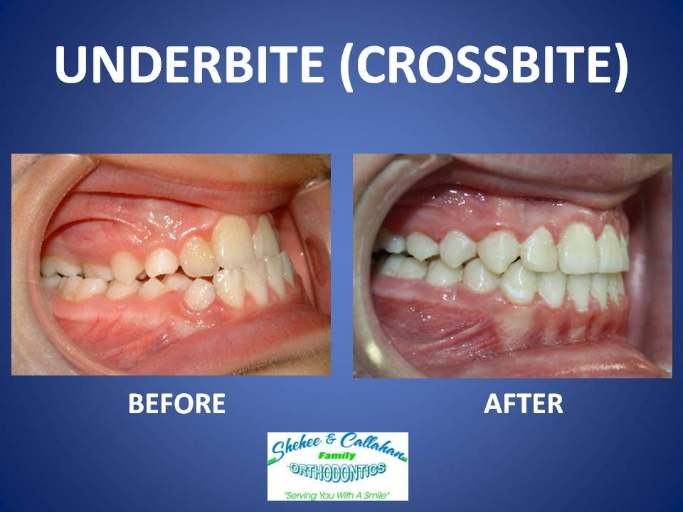 Braces before and after underbite/crossbite Invisalign