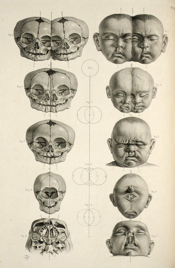 Image result for anatomical surgeon vintage book | Squire Prints ...