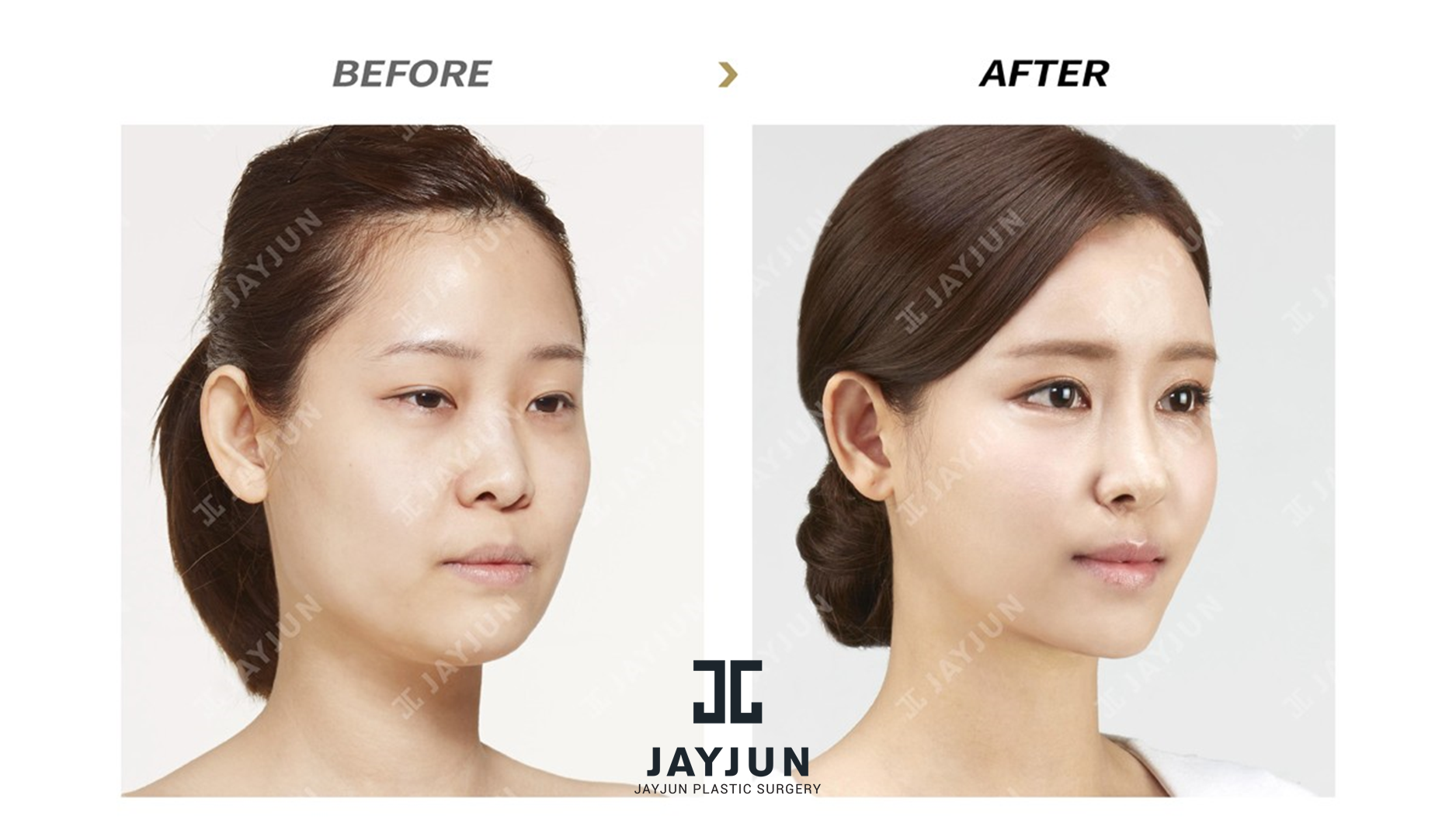 The Best Plastic Surgery In Korea Korean Star Women Top