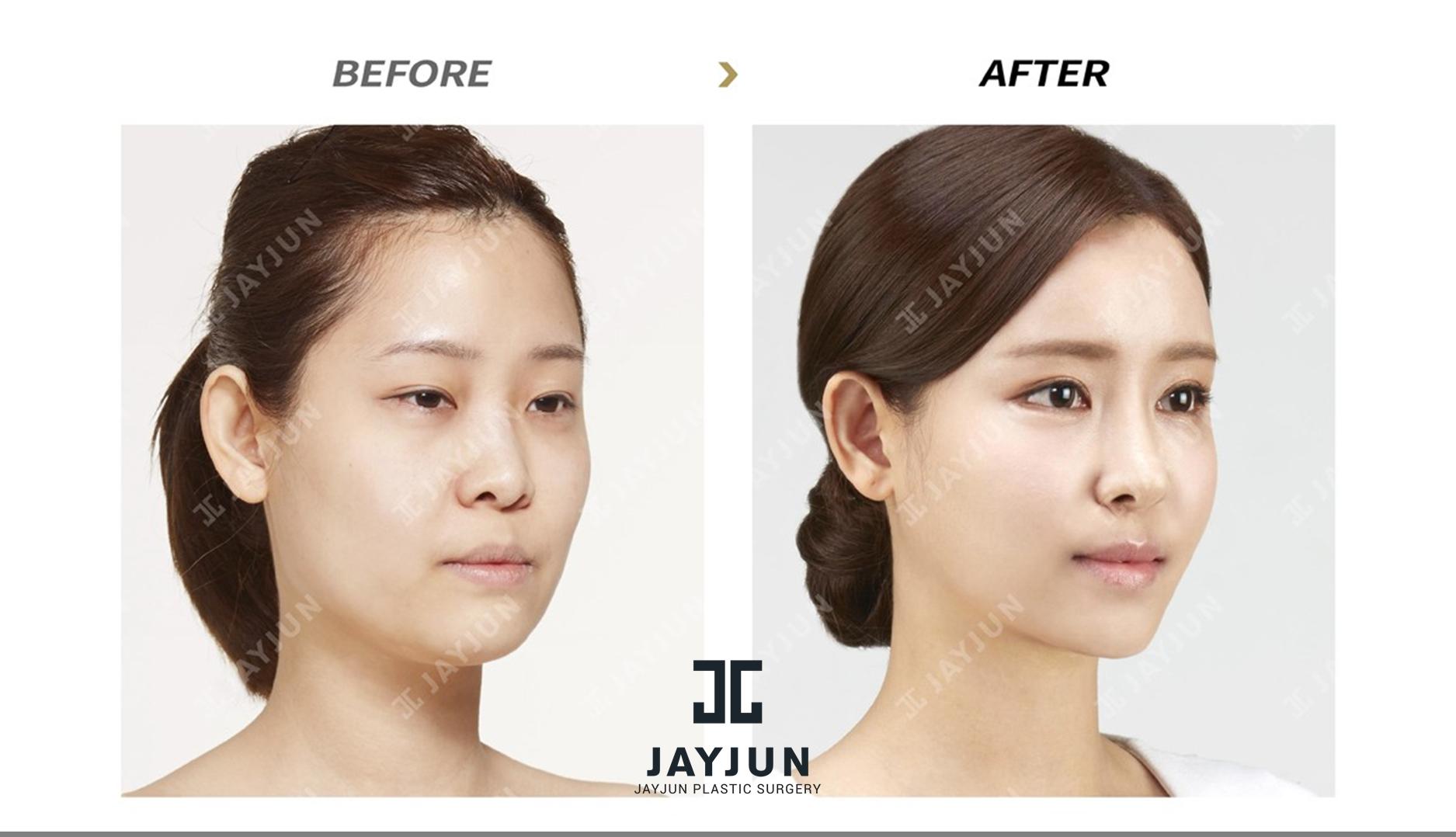 the best plastic surgery in korea korean star plastic surgery korean