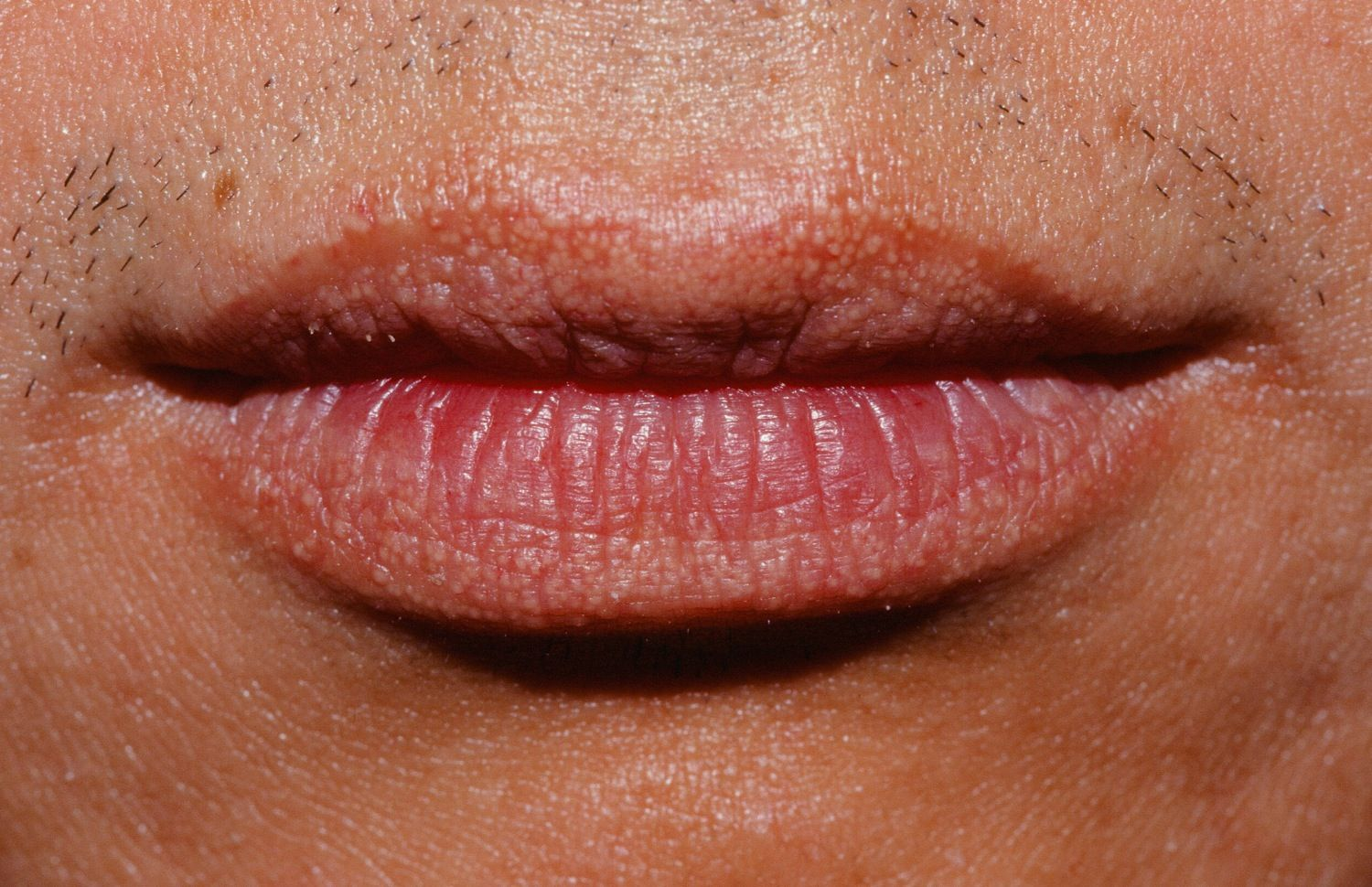 How To Get Rid Of Fordyce Spots On Lips Jpg 1500 970 Small