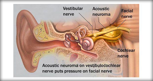 Acoustic Neuroma Fnp Pinterest Vestibular Schwannoma Brain