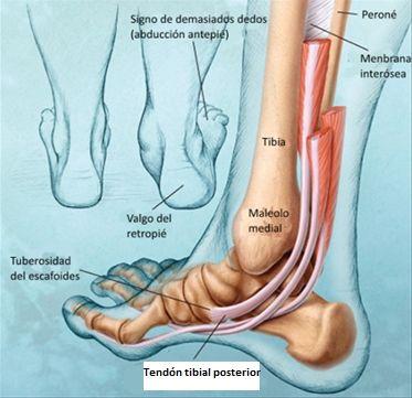 La tendinitis tibial posterior es una lesión muy frecuente en los ...