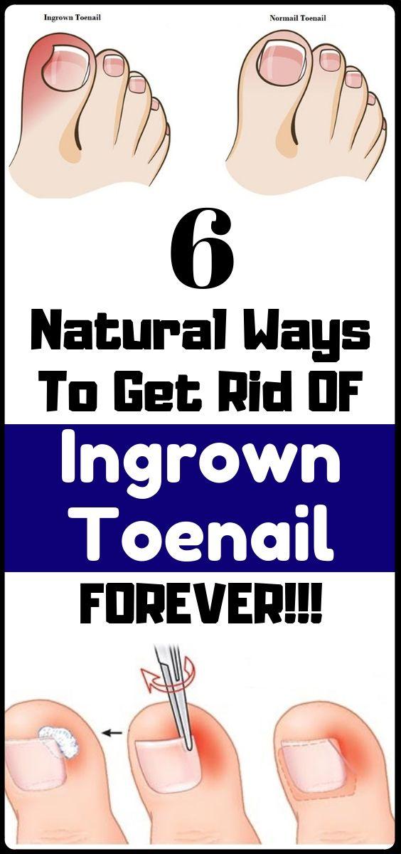 6 Natural remedies to Treat Your Ingrown Toenail for good toenail ...