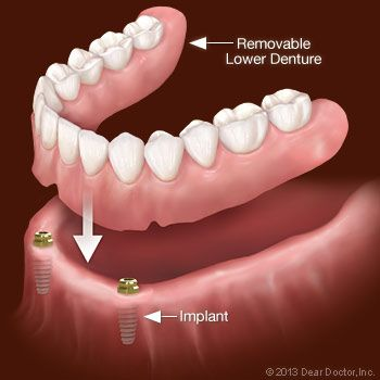 Implants secure hard to hold lower dentures give you confidence to meet drjimbrowning he have a great experience in dentures partial dentures partial dentures are a type of cosmetic dentistry procedure solutioingenieria Image collections