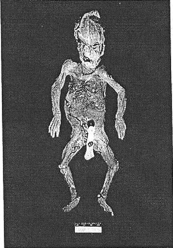 Autopsy laci peterson photos