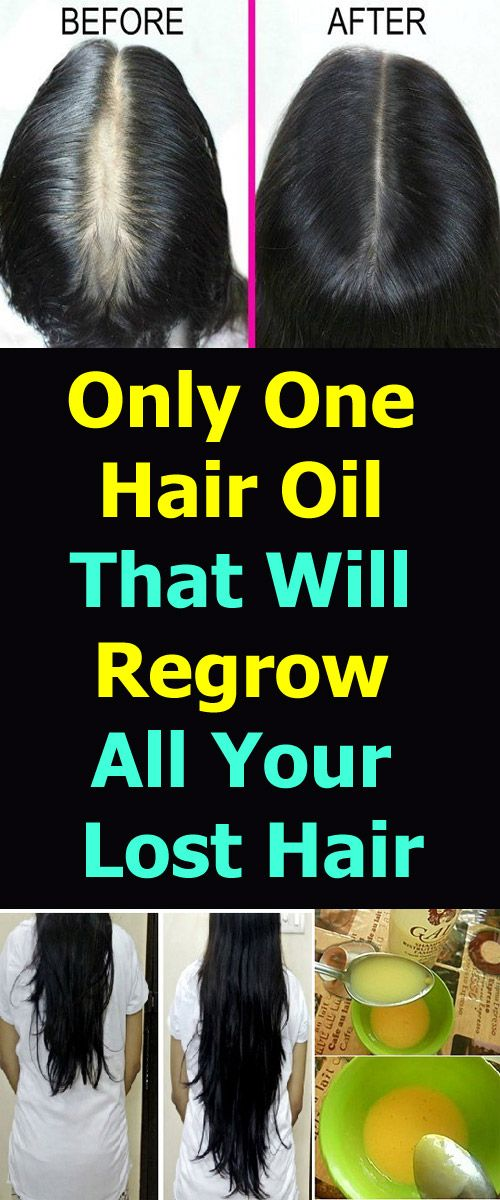 One Hair Oil That Will Regrow All Your Lost Hair! -   17 hair Natural look ideas