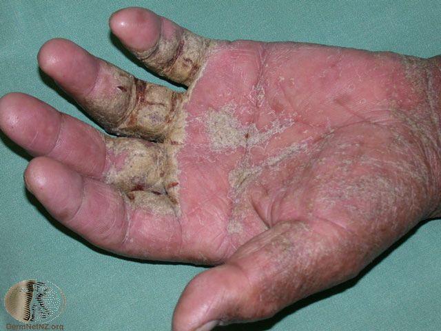 Kết quả hình ảnh cho crusted scabies