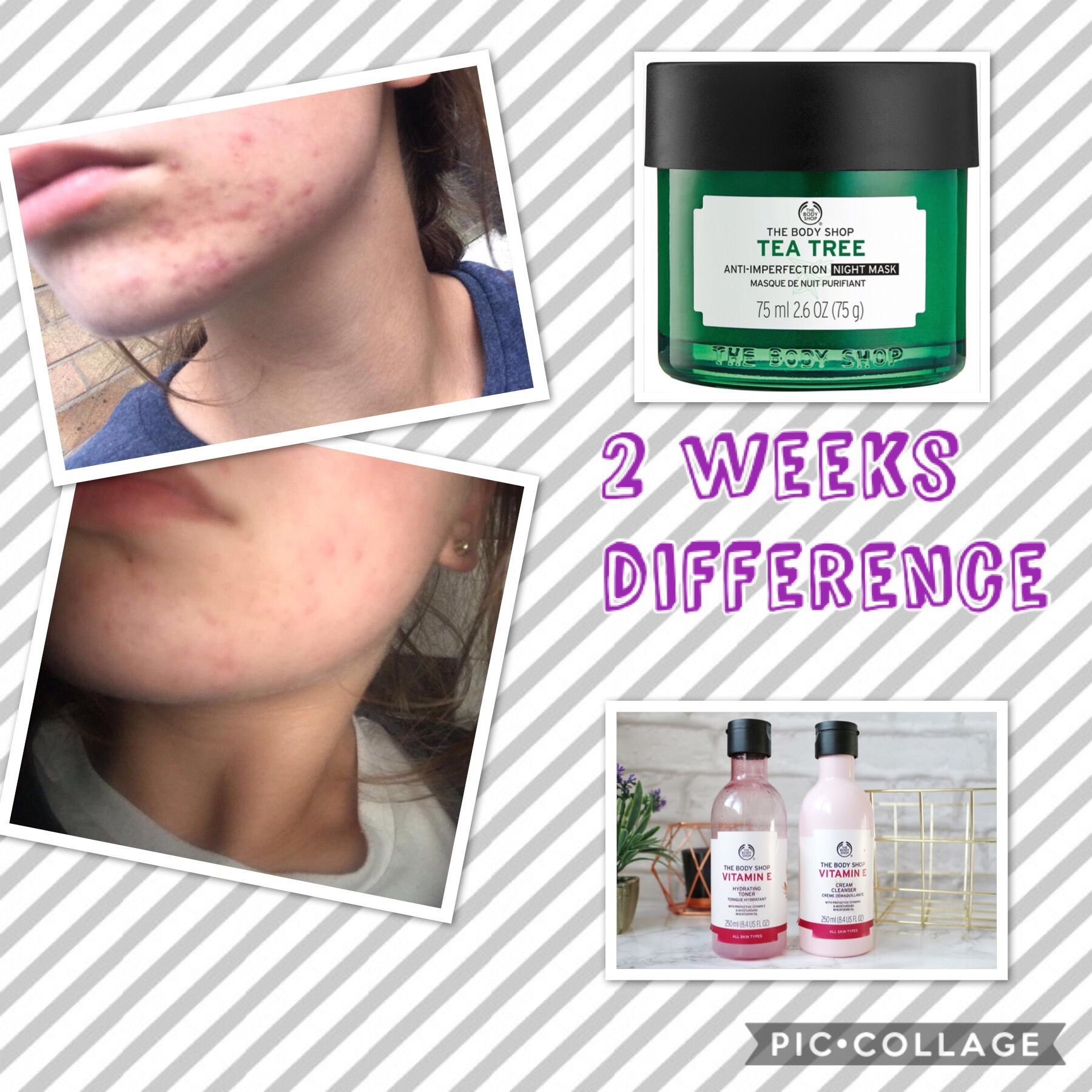 Body Shop Home Customer 2 Weeks Difference Using The Tea Tree Night Mask And Vitamin E Cleaner Toner Body Shop Skincare Body Shop Tea Tree The Body Shop
