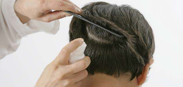 علاج القمل فى يوم واحد فى المنزل بالاعشاب بوصفة مجربة ملف متكامل وحصرى Hair Loss Treatment Hair Hair Loss