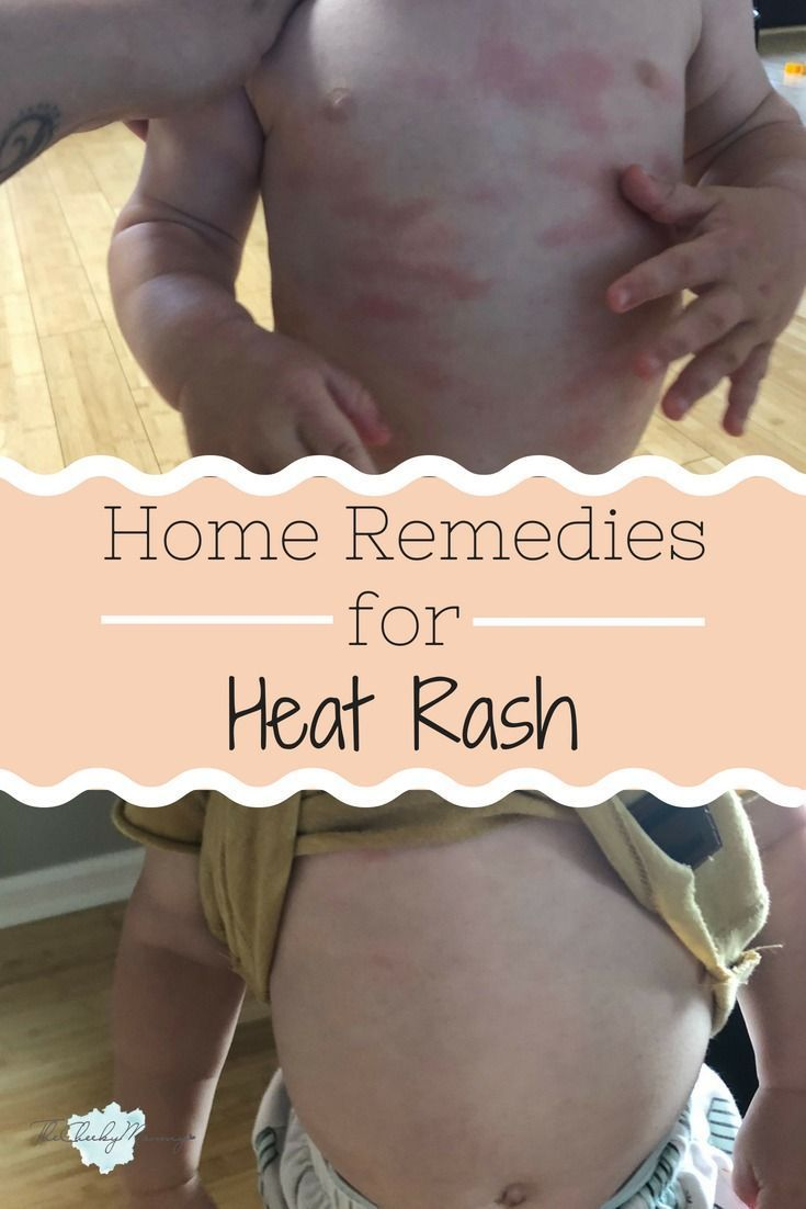 5 Effective Home Remedies for Baby Heat Rash #babyrashestreatment learn to use effective home remedies for baby heat rash. Homeopathy for heat rash is safe and effective without unwanted side... #babyrashestreatment 5 Effective Home Remedies for Baby Heat Rash #babyrashestreatment learn to use effective home remedies for baby heat rash. Homeopathy for heat rash is safe and effective without unwanted side... #babyrashestreatment