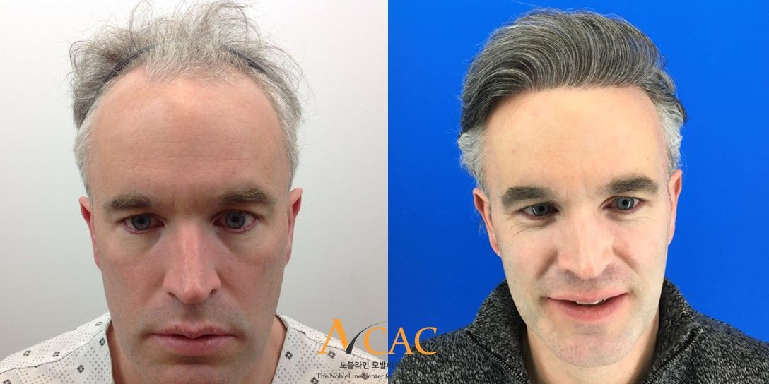 2500 Grafts Result FUE Hair Transplant After 1 Year Here is a FUE hair  transplant 1 year result of one patient who underwent a 2500 graft (about  6250 hairs) ...