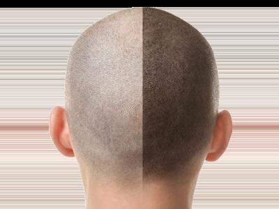 Haartransplantation Fur Manner Und Frauen Bei Estethica Haartransplantation Augenbrauentransplantation Haare