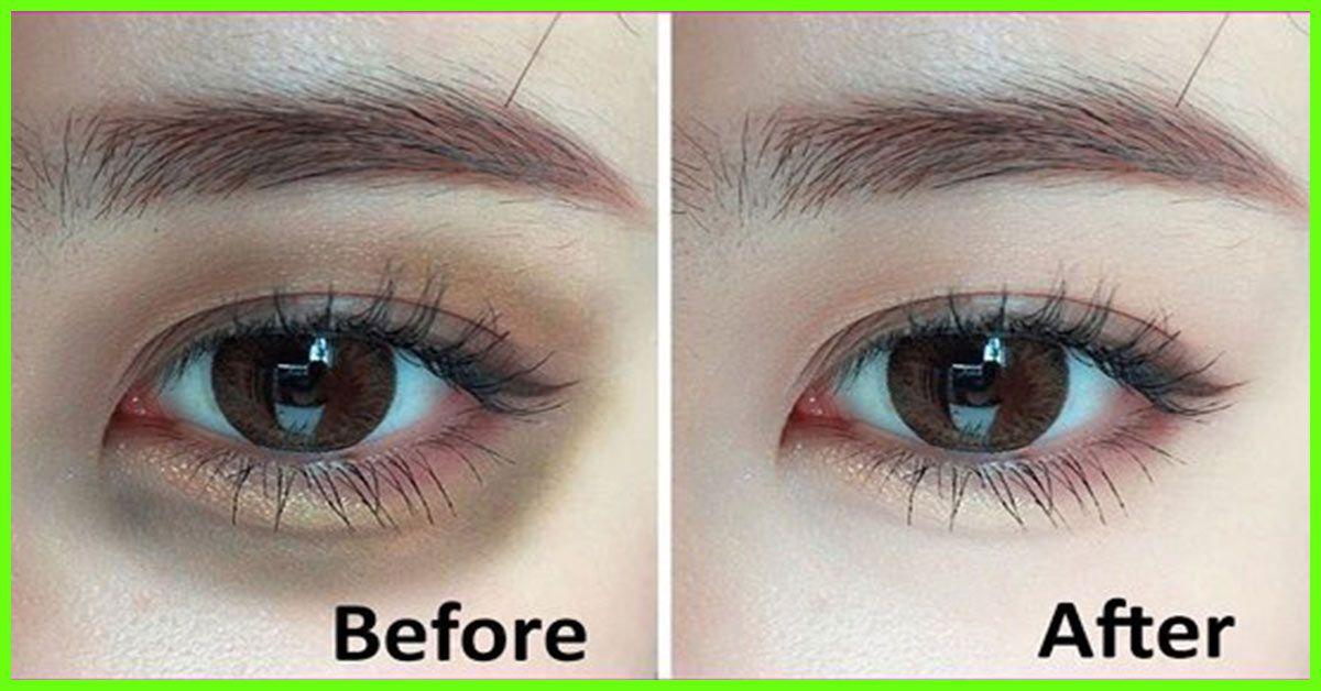 13 ways to get rid of dark circles under the eyes dark