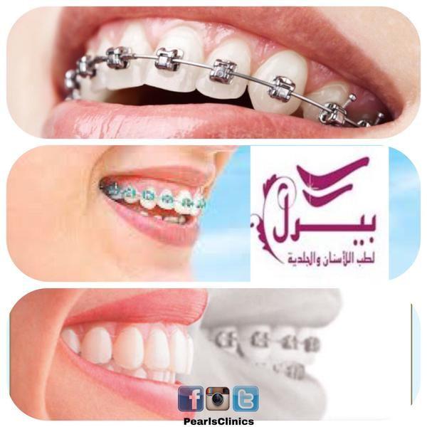 تقويم الأسنان من أهم العلاجات التجميليةللاسنان والتي تساعدعلى الحصول على اصطفاف مثالي للفك والأسنان كماانه علاج لوضع Engagement Rings Engagement Wedding Rings