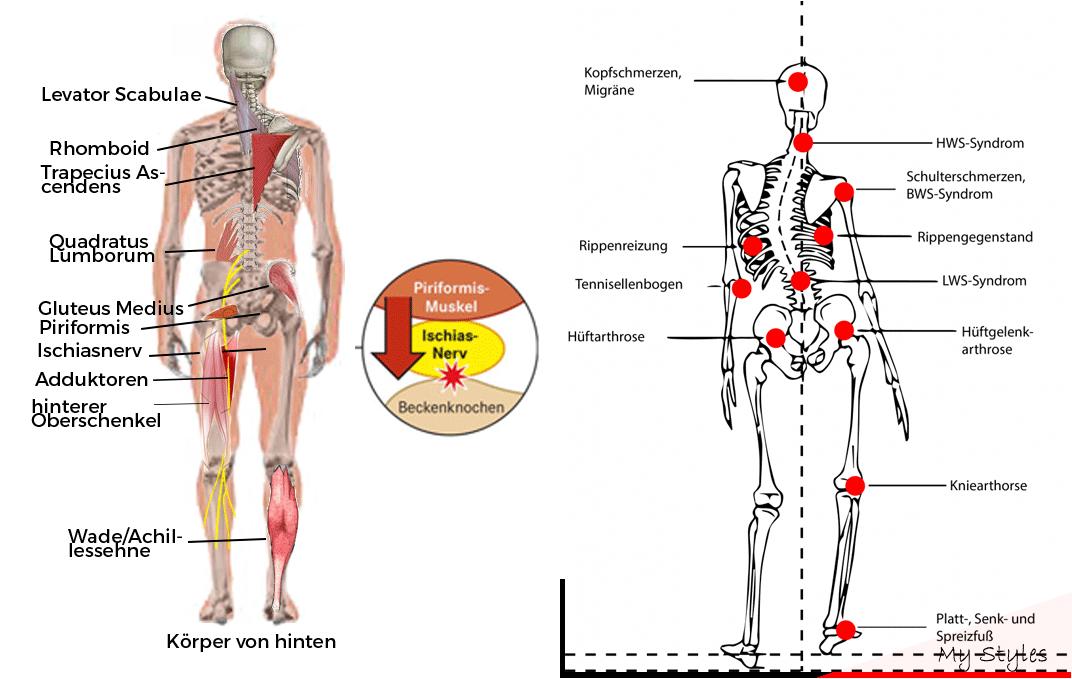 Rückenschmerzen Becken