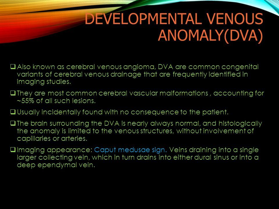 Developmental Venous Anomalies Dva Are The Most Commonly