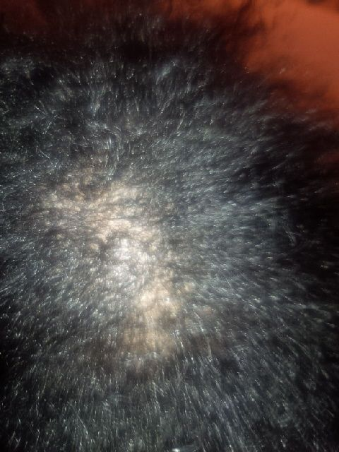 My Bald Spot Is Getting Smaller With Red S Kitchen Sink Hair System