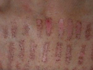 Laser Burns What To Do When You Have Been Burned By An Aesthetic