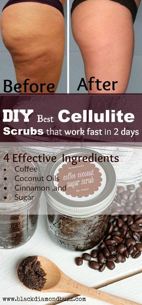 Cellulite scrub removal