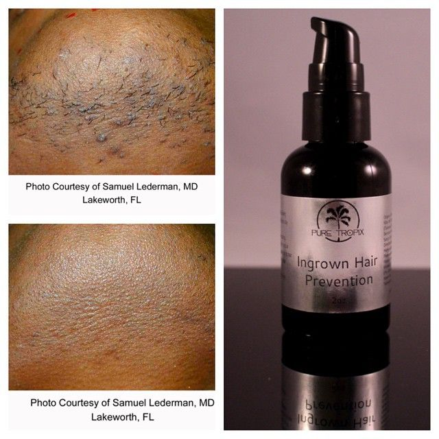 All natural in grown hair prevention system utilizing the