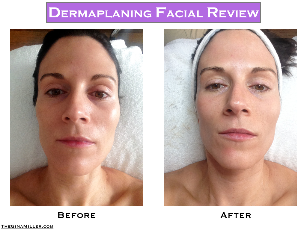 Dermaplaning Facial Review: A Simple Way To Get Glowing Skin With No ...